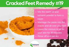 Simple Home Remedy for Dry Cracked Feet Turmeric and Neem Oil for Cracked Skin Cracked Feet Remedies, Dry Cracked Feet, Foot Remedies, Cracked Skin, Dry Skincare, Exfoliating Face Scrub, Soft Feet, Natural Moisturizer, Neem Oil