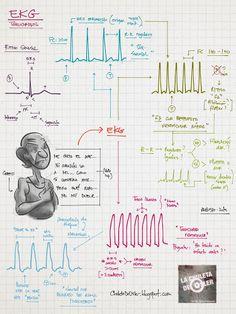 La Chuleta de Osler: EKG taquicardia