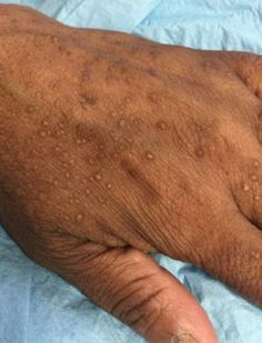 Bradavice, kurie oká, výrastky na koži. To všetko sú nepríjemnosti, sktorými sa stretá príliš veľa ľudí. Keby každý, komu niečo na tele vyrastá, chodil ku kožnému lekárovi, tí by nestíhali chodiť ani spať. Bradavice akožné výrastky sa však dajú ľahko odstrániť. Ak vám lekár potvrdil, že vaša bradavica alebo výrastok na koži nie je nič …