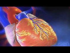 Así se produce un infarto de miocardio http://yo-tu-el-nosotros.blogspot.com.es/2015/07/como-sobrevivir-un-infarto-durante-los.html
