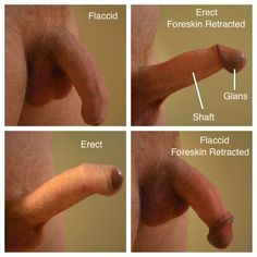 Uncircumcised male penis cannot be!