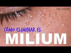 (2) Granitos en los ojos? CÓMO ELIMINAR EL MILIUM!? - YouTube Carla Diaz, Youtube, Remedies, Skin Care, Health, Makeup, Movie Posters, Spa, Glamour