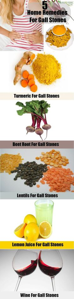 Home Remedies For Gall Stones
