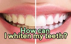 How can I whiten my teeth? The enamel, which is the first layer of the tooth, is actually a transparent structure with light transparency.   https://www.thecrookedteeth.com/how-can-i-whiten-my-teeth/