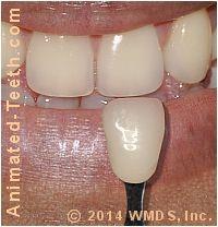 Using a dental shade guide.
