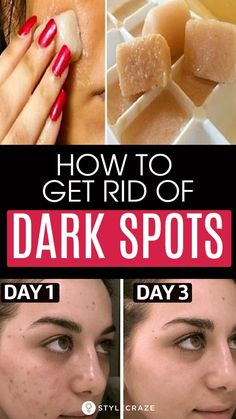 How To Remove Dark Spots On Face Fast: 6 Home Remedies - - Dark spots or hyperpigmentation occurs when your skin overproduces melanin. Here we have putforth few causes, types and remedies to get rid of dark spots. Black Spots On Face, Brown Spots On Hands, Dark Spots On Skin, Acne Spots, Lighten Dark Spots, Age Spots On Face, Facial Brown Spots, Face Age, Brown Skin