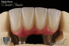 smile makeover, dental implants, beautiful, hurstdentalstudio.com