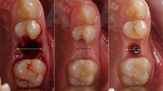FIG 2: Implante tipo 3. Curación espontánea del alvéolo con una marcada…