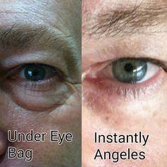Men and Women Bye Bye Under-Eye Bags! Anti-Aging Skin Care, Works like Botox Under Eye Bags, Look Younger, Anti Aging Skin Care, Eyes, Face, Bye Bye, Women, The Face, Faces