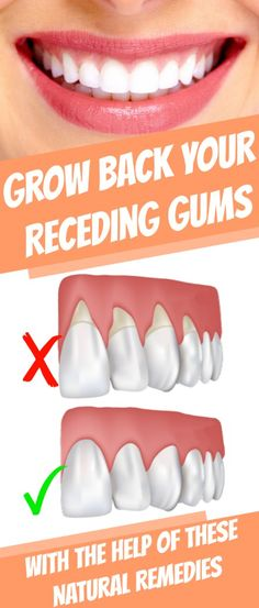 Grow Back Your #Receding #Gums In No Time With The Help Of These #Natural #Remedies