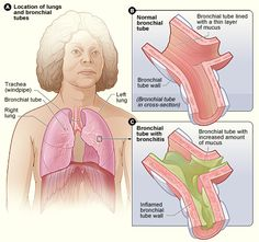 9 Home Remedies for Chest Congestion