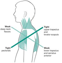 Upper cross syndrome treatment for neck and shoulder pain. Long term chiropractic treatment for those suffering chronic headaches, neck, and back tension Hand Therapy, Massage Therapy, Occupational Therapy, Physical Therapy, Physical Exercise, Fitness Workouts, Fitness Routines, Fitness Weightloss, Scapula Exercises