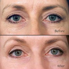 Getting Rid Of Age Indications With Face Training Yoga Workouts: Seize Your No Surgery Facelift Now!