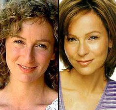 Celebrity Nose Job Gone Wrong Jennifer Grey Plastic Surgery Celebrity Plastic Surgery Famous Nose Jobs Before And After Photos Nose Job Gone Wrong Celebrity Plastic Surgery Celebrity Nose Job Gone Wrong - Celebrity Stil Jennifer Grey Nose Job, Jeanie Bueller, Jennifer Aniston Plastic Surgery, Plastic Surgery Pictures, Plastic Surgery Gone Wrong, Celebrity Plastic Surgery, Dirty Dancing, Dancing With The Stars, Famous Faces