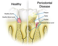 Dental cleaning, checkups, and gum disease treatment is important to prevent gingivitis, or periodontal disease. Dental checkups and dental cleanings. Gum Health, Oral Health, Dental Health, Dental Care, Dental Hygiene, Teeth Health, Dental Humor, Dental Assistant, Health Guru