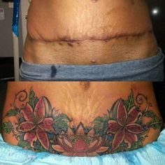 tattoos after tummy tuck image