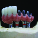 Um protocolo de Protese Fixa Sobre Implantes apropriado para a fabricação de restaurações é um componente chave para o sucesso cosmético complexo na odontologia restauradora