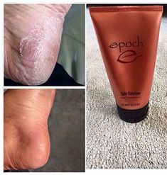 Get Pretty Feet with Epoch Sole Solution Foot Treatment Features crushed allspice berry—traditionally used by the indigenous people of Central America to relieve persistent dry, cracked, red skin on heels, toes, and sides of feet. Total Beauty ranked Nu Skin Epoch Sole Solution Foot Cream as the HIGHEST in Total Beauty's 8 Best Foot Treatments.