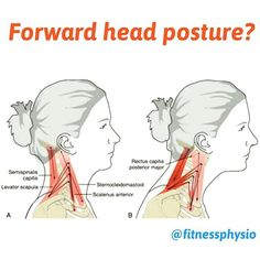 Forward head posture is often related to a progressive shortening of several anterior neck muscles. This progressive shortening. Chiropractic Humor, Chiropractic Therapy, Neck Muscle Anatomy, Body Anatomy, Forward Head Posture Correction, Signs Of Fibromyalgia, Shoulder Pain Relief, Postural, Neck Problems