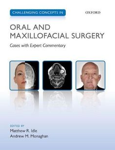 Challenging Concepts In Oral And Maxillofacial Surgery: Cases With Expert Commentary free ebook Surgeon Humor, Surgeon Quotes, Implant Dentistry, Dental Implants, Wisdom Teeth Funny, Oral Pathology, Oral Maxillofacial, How To Prevent Cavities, Dental Bridge