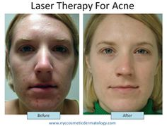 There are a lot of acne scar remedy ranging from natural to cosmetic procedures. Here at Schweiger Dermatology, we will help you deal with the acne scar with the help of a procedure called Laser Acne Scar Removal.    http://www.nyccosmeticdermatology.com/laser-acne-scar-removal.htm/