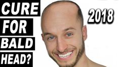 Hair System, Hair Replacement Clash Of Clans Cheat, Hair Loss Cure, Hair System, Bald Heads, Affiliate Marketing, Love Quotes, The Cure, Japan, Mary Janes