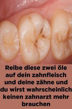 Reibe diese zwei öle auf dein zahnfleisch und deine zähne und du wirst wahrscheinlich keinen zahnarzt mehr brauchen