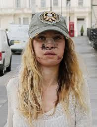 """Alicia Douvall: """"I've had so much surgery my face doesn't move. I can't smile properly and I can't breathe through my nose. If I'd never had surgery, I'd be far better looking than I am now. Facial Scars, Beauty Myth, Cuts And Bruises, Latest Celebrity News, Film Review, Halloween Makeup, Gossip, How To Look Better, Baseball Hats"""