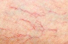 ふくらはぎや太ももに広がる赤や紫の細い線、ボコボコに浮き出る太い血管……下肢静脈瘤は見かけが悪いだけでなく、痛 …
