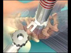 Traitement chirurgical d'un canal lombaire étroit par voie mini-invasive...