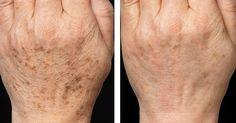 Меланоциты —это клетки, которые отвечают за основную пигментацию кожи человека. Они вырабатывают са...