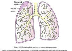 Spontaneous Pneumothorax Med School, Young People, Pediatrics, Nursing, College, Goals, Health, Happy, University