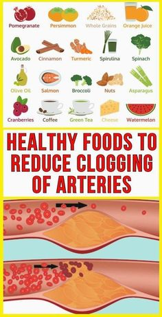 Heart Healthy Recipes, Healthy Food Choices, Healthy Foods To Eat, Healthy Tips, Healthy Living Tips, Stay Healthy, Healthy Eating, Low Carb Diets, Natural Dandruff Remedy