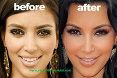 Kim Kardashian Nose Job Before And After Plastic Surgery