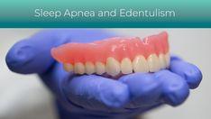 Glidewell Sleep Apnea, Dentistry, Dental, Teeth, Dentist Clinic, Tooth, Dental Health