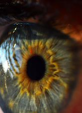 Iridology is an affordable and noninvasive tool use to look at the health of your body.