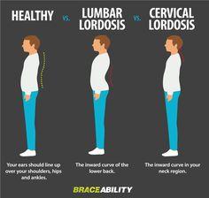 1000+ images about Lordosis on Pinterest | Low back pain ...