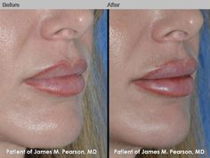 9 Best Perma lip implants images in 2015 | Makeup, Lips, Lip