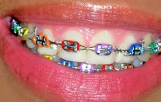 As you are placing your dental-brackets on, you can get pretty much get any color. The brackets will be set on the teeth for a while, so it's important to get accustomed to them. Dental Braces, Teeth Braces, Rainbow Braces, Braces Rubber Bands, Braces Bands, Cute Braces Colors, Braces Tips, Getting Braces, Crooked Teeth