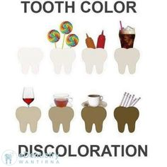 Wow - I got a fair few questions about the whitening, so I'll add another post! Different foods cause different levels of discoloration, with smoking being the worst offender!
