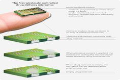 Programmable Drug Delivery Implant Performs Well in Clinical Trials