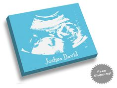 Ultrasound Artwork Canvas Print Gender by YourMemoriesOnCanvas, $20.00