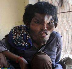 Sain Mumtaz, 22, of Pakistan, has Proteus syndrome, the same syndrome that affected Joseph Merrick (the Elephant Man).