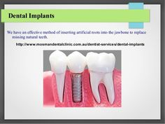 If you are suffering from dental problems and looking to hire dental clinic in North Shore for a long term, Then Visit today. Dental Problems, Dental Implants, North Shore, Clinic