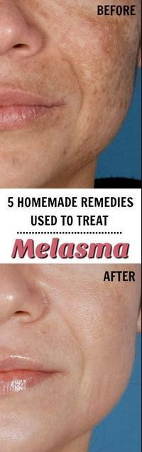 5 Homemade Remedies Used to Treat Melasma