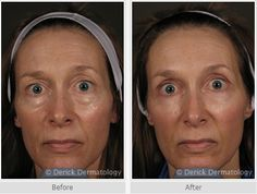 Before/after JUVÉDERM® | Juvederm eyes