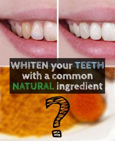 Yes, it's true! The yellow powder that tarnishes almost everything, it's the secret ingredient that makes your smile brighter, whitening your teeth!