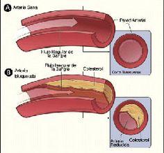 El colesterol es una sustancia que se encuentra en muchos lugares de nuestro organismo y que es imprescindible para su buen funcionamiento. No obstante, cuando los niveles de colesterol se disparan puede ser necesario realizar cambios en nuestra alimentación, hábitos de vida e incluso tomar medicación para reducir y llevar dichos niveles a unos valores normales.