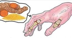 I 5 migliori rimedi naturali per curare l'artrite reumatoide