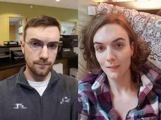 Post with 6751 views. vs HRT Handsome to Beautiful ? Transgender Transformation, Male To Female Transformation, Male To Female Transgender, Transgender Girls, Mtf Transition, 2 Girl, Gorgeous Women, Beautiful, Girl Gifs